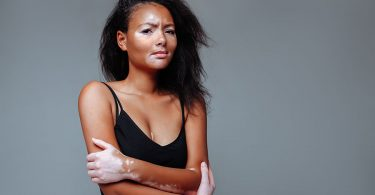 young-african-american-woman-with-vitiligo